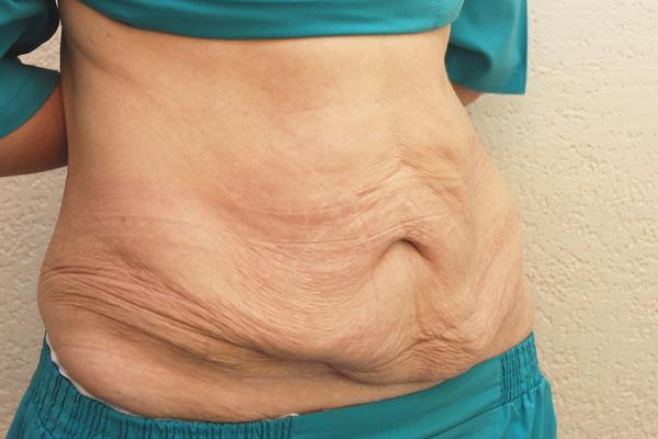 Убрать жиры на внутренней стороне колена
