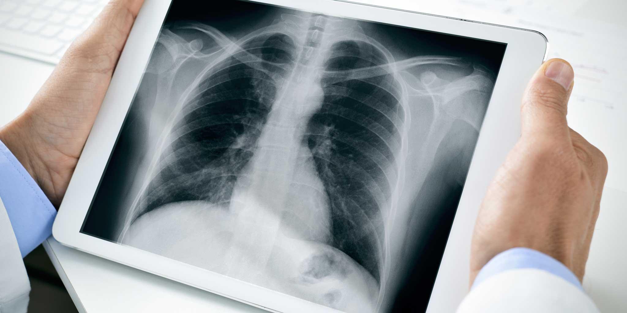 Сделать рентген — цифровая рентгенодиагностика платно — цены