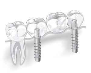 Установка мостовидного протеза с опорой на имплантаты