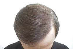 Пересадка волосы санкт-петербург цена