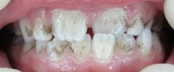 Профессиональная гигиена полости рта перед началом ортодонтического лечения (до)