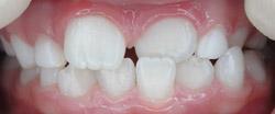 Профессиональная гигиена полости рта перед началом ортодонтического лечения (после)