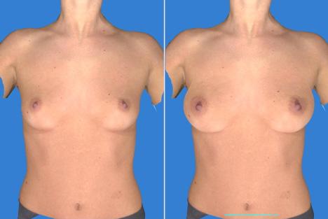 Как увеличить бюст груди