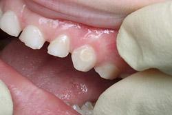 Вид зуба после лечения (пациенту 4 года)