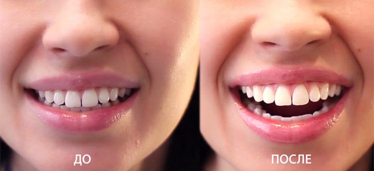 фото зубов у стоматолога фото до и после