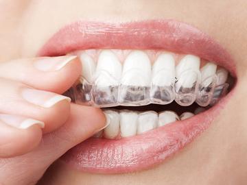 Картинки по запросу что такое домашнее отбеливание зубов
